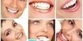 Penyebab Gigi Kuning & Cara Memutihkannya