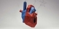 6 Penyebab Serangan Jantung Yang Tidak Kita Duga