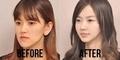Mengejutkan! Foto Sebelum dan Sesudah Orang Korea Operasi Plastik