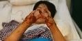 Kecelakaan Kerja, Tangan Pria asal China ini Jadi Seperti Kepiting