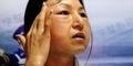 Xiaolian, Gadis 20 Tahun ini Seperti Nenek-nenek Karena Operasi Plastik
