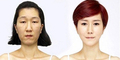 Operasi Plastik Membuat Wajah Wanita Korea ini Jadi Sangat Cantik