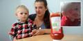 Bocah 2 Tahun Nyaris Meninggal Karena Saus Tomat