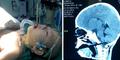 Miris, Sumpit Tertancap di Otak Bocah 1,5 Tahun