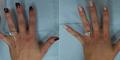 Wanita ini Operasi Tangan Demi Foto Selfie Cincin Tunangan