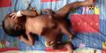Bayi dengan 4 Tangan dan 4 Kaki Lahir di Uganda