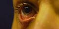 Cacing Sebesar Ular Hidup di Mata Wanita Saudi