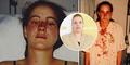 Dihajar Polisi, Wanita Ini Terima Permintaan Maaf 18 Tahun Kemudian
