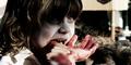 Dua Bocah 'Zombie' Pemakan Daging Mentah dan Darah Hebohkan Mesir