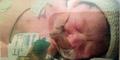 Ibu di Irlandia Lahirkan Bayi Tanpa Miliki Darah