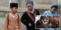 Kisah Pilu Ari Wibowo, Bocah Berkulit Ular dari Tangerang