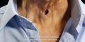 Penderita Kanker Tenggorokan Hadir di Iklan Rokok Terbaru