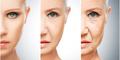 5 Tanda Penuaan Dini Akibat Stres