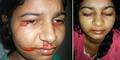 Preepti Gupta, Gadis India ini Menangis Air Mata Darah