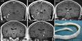 Cacing Pita 10 cm Hidup di Otak Pria Inggris 4 Tahun