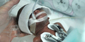 Keajaiban 'Bayi Sumpit', Bayi Prematur Terkecil di Tiongkok Bertahan Hidup