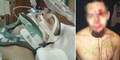 Mendadak Amnesia, Penjahat Linglung Batal Dipenjara