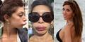 Petaka Operasi Kecantikan, Bibir Artis Seksi Berubah Mirip Bebek