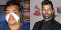 Fran Mariano Operasi Plastik 12 Kali Agar Mirip Ricky Martin