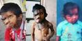 Miris, Bocah India Penderita Tumor Disebut Monster