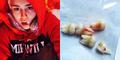 Miley Cyrus Pamer Foto Habis Cabut 5 Gigi Sekaligus