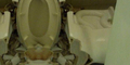Nekat Jongkok di WC Duduk, Bokong Pria Tiongkok Robek
