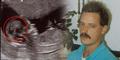 Wajah Hantu Kakek Muncul di USG Cucunya