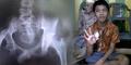 Foto Sinar-X Buktikan Ada Telur di Dalam Perut Akmal