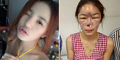 Model Cantik Thailand Jadi Buruk Rupa Usai Suntik Silikon