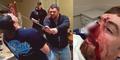Niat Potong Sosis, Pria Amerika Malah Tebas Hidung Temannya