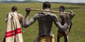 Pasien Cangkok Penis di Afrika Bakal Punya Anak Kandung