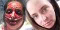 Disarankan Dokter Mandi Pakai Pemutih, Wajah Sarah Melepuh