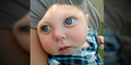 Otak & Tengkorak Setengah, Bayi Ini Mampu Hidup!