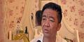 Yuan Taiping, Pria 30 Tahun Berwajah 80 Tahun Akibat Penyakit Langka