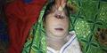 Heboh! Lahir Bayi Mata Satu di Papua