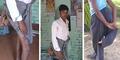 Pria India Dijuluki Setan Karena Punya Empat Kaki