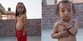 Kondisi Aneh, Dua Bocah di India Bertubuh Orang Tua