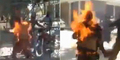 Tubuh Pria Ini Terbakar Gara-gara Baterai Ponsel Meledak