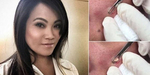 Video Dokter Cantik Memencet Jerawat Populer di YouTube